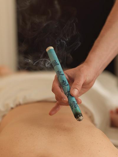 acupuntura y moxibustión